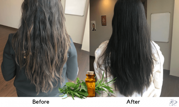 5 Benefits Of Castor Oil And 5 Ways To Use This Superstar On Dry Brittle Hair